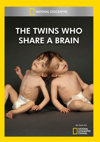 The Twins Who Share A Brain